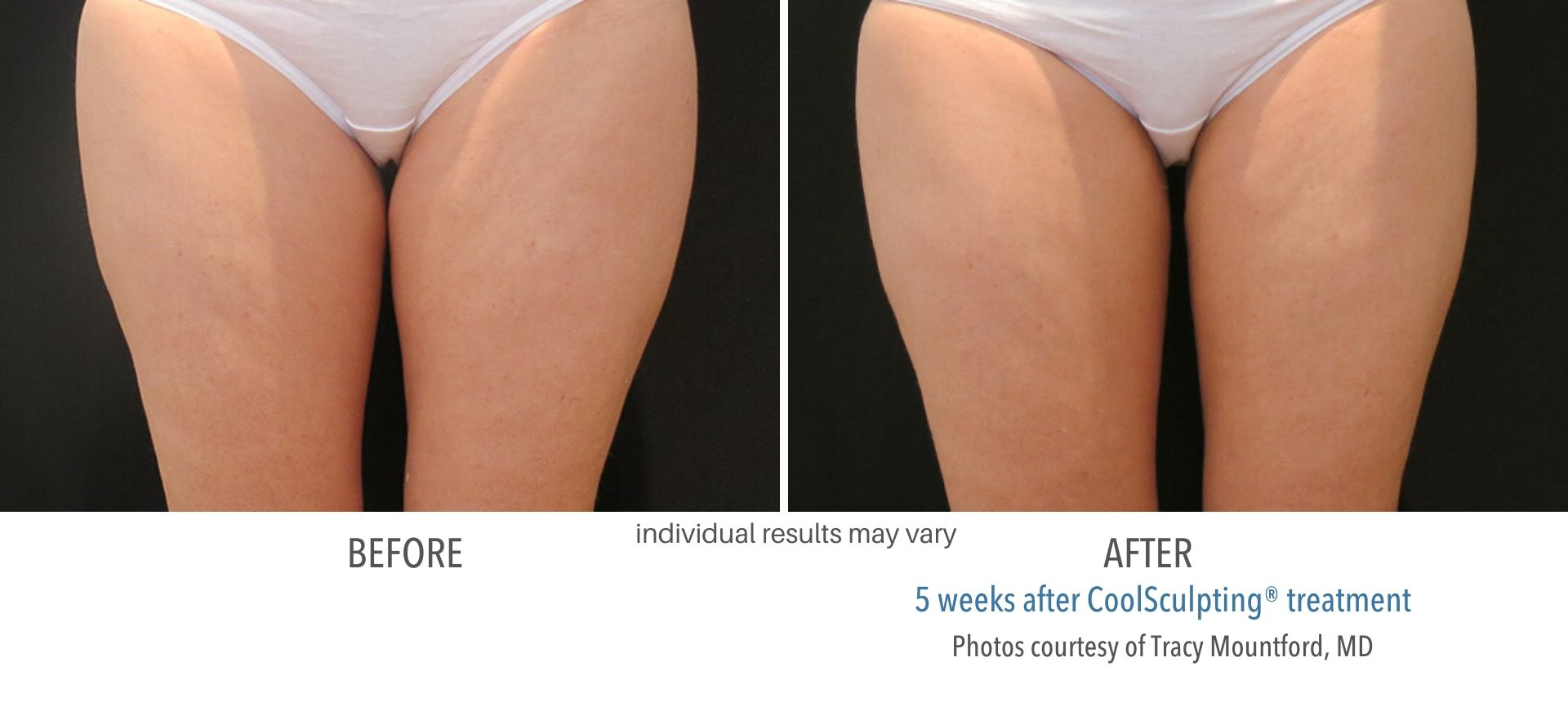 CoolSculpting In Aurora and Denver