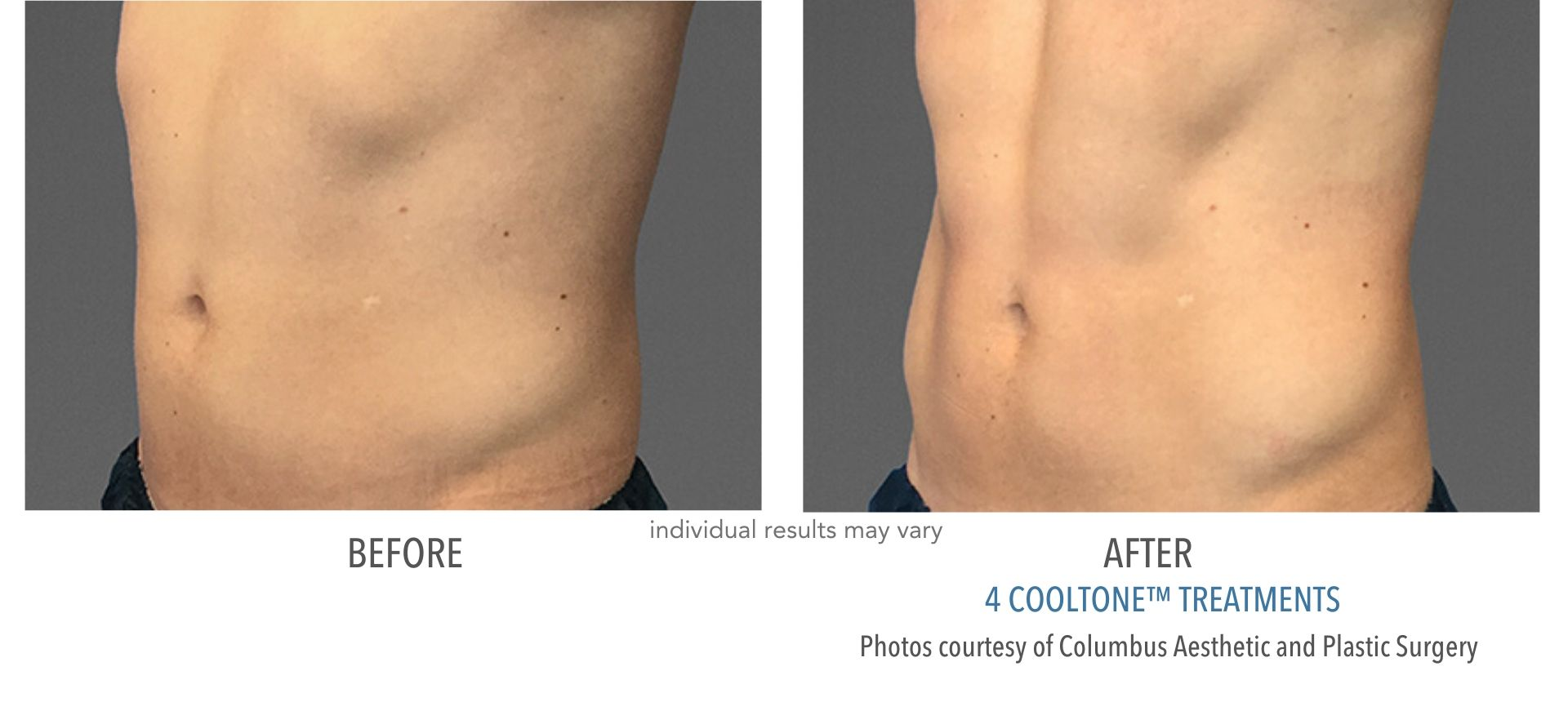 cooltone before and after at Always Beautiful Medspa in Aurora, CO
