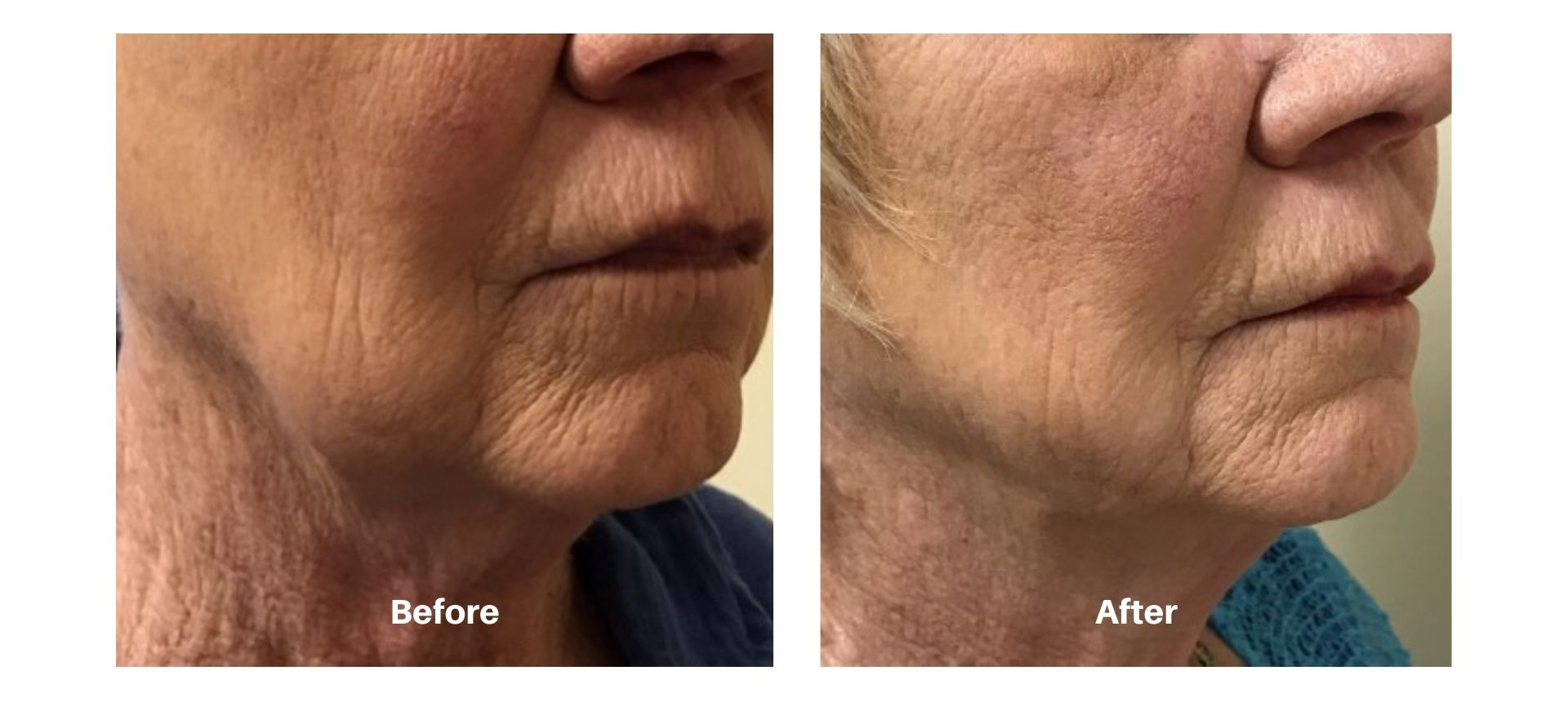 Woman's before and after pictures from kybella
