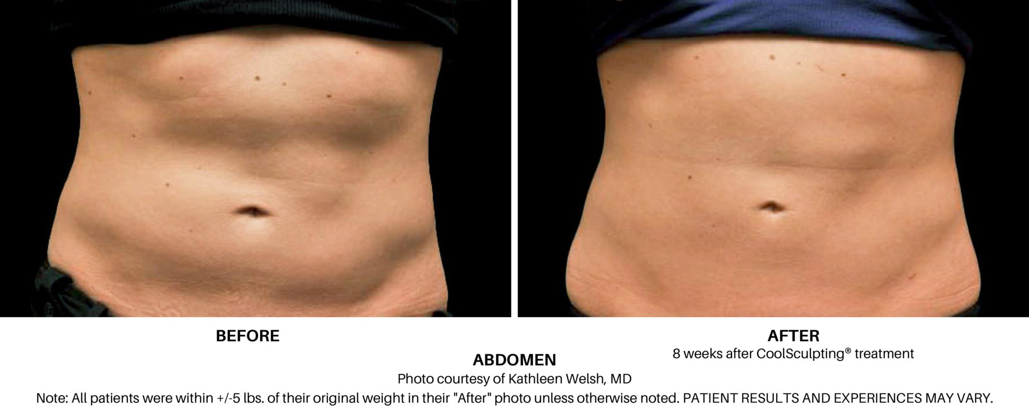 Coolsculpting Elite Before and After on Female Abdomen Always Beautiful Coolsculpting
