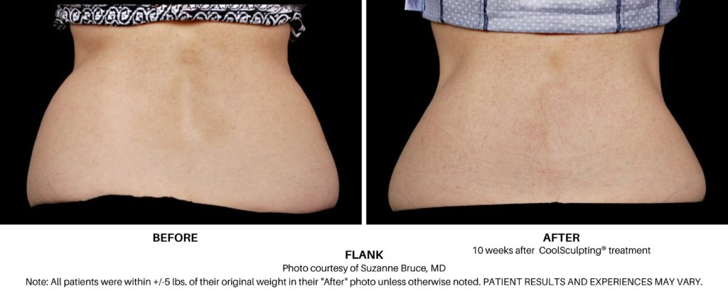Coolsculpting Elite Before and After on Female Flank Always Beautiful Coolsculpting